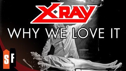 X-Ray - Why We Love It